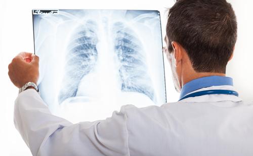 אבחון מחלת פיברוזיס ריאתי